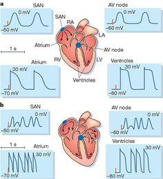 myocardial infarction name atrial fibrillation medical-helpful-i. Nursing School Tips, Nursing Tips, Nursing Notes, Medical Careers, Medical Assistant, Myocardial Infarction, Student Info, Nursing Profession, Nursing Mnemonics