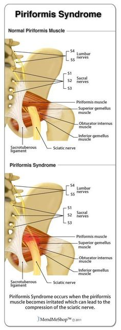 Information about sciatic pain caused by the sciatic nerve being pinched by the piriformis muscle. Learn how Deep Tissue Rehab therapy can reduce swelling, pain and inflammation in the piriformis muscle to alleviate the pinching of the sciatic nerve. Sciatic Pain, Sciatic Nerve, Nerve Pain, Hip Pain, Back Pain, Piriformis Syndrome Treatment, Psoas Release, Scoliosis Exercises, Massage