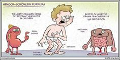Hemoch-Shölein Purpura