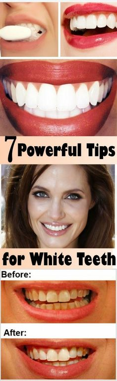 Natural Tooth Whitening Ideas: 7 Powerful Tips For White Teeth - Salud Health And Beauty, Health And Wellness, Health Tips, Health Fitness, Health Care, Beauty Secrets, Beauty Hacks, Natural Teeth Whitening, Skin Whitening