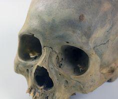 UB_Skull1_3.jpg