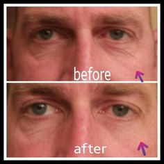 Instantly Ageless before and after Anti Aging Tips, Best Anti Aging, Anti Aging Cream, Anti Aging Skin Care, Dna Repair, Under Eye Bags, You Look Beautiful, Love My Job, Anti Wrinkle