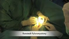 1000 images about pyloric stenosis on pinterest infants