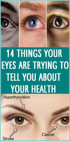 14 Things Your Eyes Are Trying To Tell You About Your Health fits healt is part of Eye health advertisement Your eyes are the window to your soul, a phrase we have all heard and probably said Who - Leaky Gut, Ffa, Motivation Yoga, Weight Loss Tips, Lose Weight, Mat Yoga, Eyes Problems, Yoga Photography, Morning Yoga