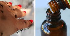 Essential oils go back centuries and they have dozens of uses. One of the most common uses in modern times is repelling mosquitoes. These flying pests can cause itchy bites and they can also transmit disease. When you are spending time outdoors, it is important to prevent bites as much as possible. Proper use of... View Article