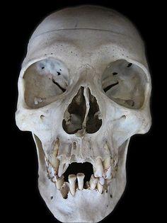 Doris - close up | Real human skeleton - ex medical, left on… | Flickr