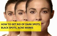 How to Get Rid of Dark Spots, Black Spots on Face from Acne, Pimples and Scars Scar Remedies, Natural Acne Remedies, Home Remedies For Acne, Skin Care Remedies, Black Spots On Face, Dark Spots, Brown Spots, Darkness Around Mouth, Skin Care Routine For 20s