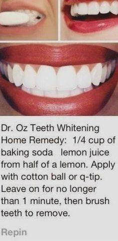 Teeth Whitening Remedies, Natural Teeth Whitening, Whitening Kit, Skin Whitening, Crest Whitening, Instant Teeth Whitening, Homemade Teeth Whitening, White Teeth Tips, Teeth Care