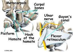 Ulnar tunnel syndrome, also known as Guyon's canal syndrome or Handlebar palsy, is caused by entrapment of the ulnar nerve in the Guyon canal as it passes through the wrist.