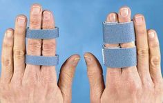 "(Foam ""buddy"" splint) to protect finger following fracture or to encourage movement of stiff finger"
