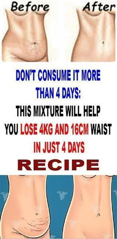 Don't Consume It More Than 4 Days: This Mixture Will Help You Lose 4 kg And 16 cm Waist In Just 4 Days– Amazing Recipe! - Health Care & Fitness Tips Health And Wellness, Health And Beauty, Health Fitness, Health Care, Fitness Tips, Wellness Tips, Trying To Lose Weight, Weight Gain, Losing Weight