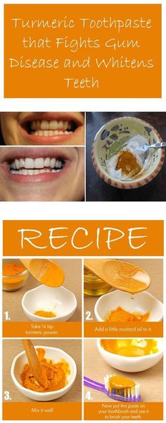 Turmeric Toothpaste That Fights Gum Disease And Whitens Teeth (VIDEO)