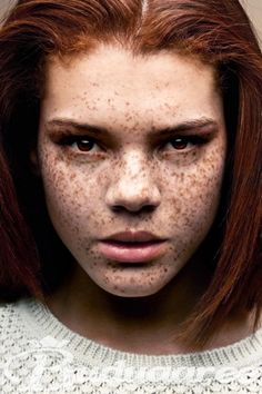 jade thompson #freckles Frm bd: Freckles are Beautiful
