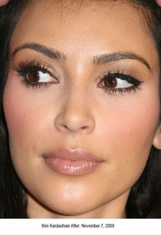 Comparison Kim Kardashian before and after nose job | Plastic Surgery Stars Before and After... - Kim Kardashian Style