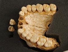 Neanderthal remains found in El Sidrón Cave Dental tartar reveals evidence of medicine. July 18, 2012 (Image: CSIC Comunicación)