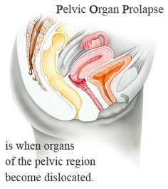 Pelvic organ prolapse is when organs of the pelvic region become dislocated. Pelvic Floor Exercises, Obstetrics And Gynaecology, Urinary Incontinence, Floor Art, Johnson And Johnson, In Law Suite, Mesh, Surgery, Core