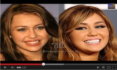 Celebrities #BeforeAndAfter #CosmeticDentistry!  You don't have to be a famous to #lookwoow and feel great about your self!  At #Lookswoow,#DentalClinic and #WhiteningSpa your appearance is our number one priority, let us take care of you in hands of the experts!  #BrightWhiteSmile, #WeLoveToSeeYouSmile, #SmileBrightLikeADiamond  http://www.youtube.com/watch?v=vSkdjpBGTlk