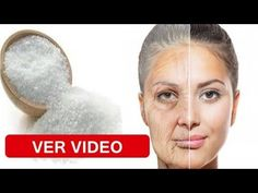The best place for video content of all kinds. Please read the sidebar below for our rules. What Is Psoriasis, Psoriasis Cream, Psoriasis Diet, Psoriasis Remedies, Beauty Secrets, Diy Beauty, Beauty Hacks, Beauty Tips, Essential Oils For Psoriasis
