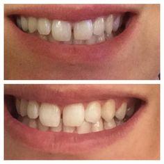 Znalezione obrazy dla zapytania ap 24 Nu Skin, Whitening Fluoride Toothpaste, Teeth Whitening, Bridal Hair And Makeup, Hair Makeup, White Teeth Tips, Ap 24, Instagram Feed, Spa