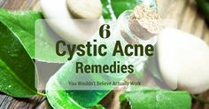 Hard, painful zits stressing you out? Check out these 5 natural cystic acne remedies with ingredients you can easily find at home.
