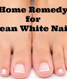 Awesome Home Remedy that REALLY WORKS! 2.5 Tbsp Baking Soda + 1 Tbsp Peroxide. Leave paste on & under nails for 3 mins once a week.