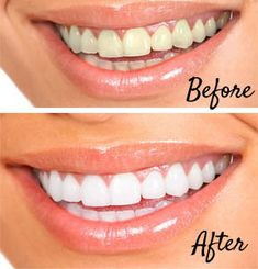 Before and After. Brighten your smile for white youthful teeth