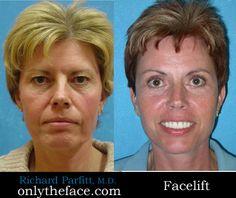 Facelift by Dr. Richard Appleton, WI