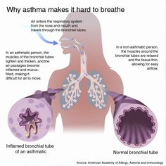 Signs Of A Asthma Attack In Children