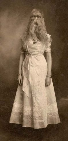 """Alice E. Doherty was born in 1887 with a rare genetic mutation called """"hypertrichosis"""", or """"werewolf syndrome"""", which causes excessive body hair. She was billed as """"The Minnesota Woolly Baby"""". At birth, she was covered all over in two-inch long, silky blonde hair. She began exhibiting as a sideshow """"freak"""" at the age of two, and remained in the business until 1915."""