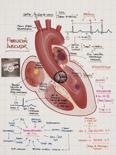 La Chuleta de Osler: Cardiología - Fibrilación auricular: Patogenia del ictus cardioembólico y prevención