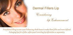 Boost your self confidence with Chemical Skin Peel Do you hesitate while talking to someone because of acnes, scars and wrinkles on your face Then solution of your problem lies with Chemical Skin Peel treatment in Dermal Fillers Lips, Chemical Skin Peel, Acne Scars, Self Confidence, Face, Chemical Peel, The Face, Confidence, Faces