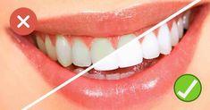 How to get whiter teeth fast? Get whiter teeth naturally. Get whiter teeth fast at home. How to make your teeth white? Home remedies for teeth whitening. Teeth Whitening Procedure, Teeth Whitening Remedies, Teeth Implants, Natural Teeth Whitening, Whitening Kit, Gum Health, Oral Health, Dental Health, Makeup