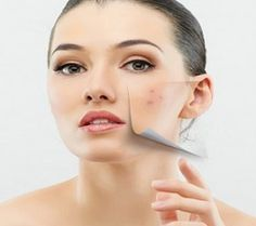 Now try out natural remedies to cure skin problems
