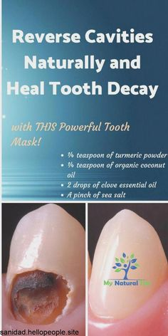 How To Heal Tooth Decay And Reverse Cavities Naturally! … How To Heal Tooth Decay And Reverse Cavities Naturally! Teeth Health, Healthy Teeth, Oral Health, Health Tips, Dental Health, Dental Care, Baking Soda Teeth, Reverse Cavities, Remedies For Tooth Ache