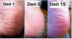 Never Suffer From Cracked Heels Corns and Calluses Again with This Home Remedy Nie wieder unter rissigen Fersen Corns und Hornhaut leiden mit diesem Hausmittel Related posts: No related posts. Skin Care Regimen, Skin Care Tips, Leiden, Skincare For Combination Skin, Cream For Dry Skin, Cracked Skin, Coconut Oil For Skin, Beauty Tips For Skin, Beauty Hacks