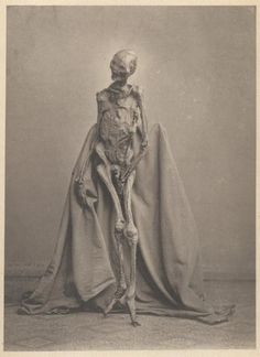 blackpaint20: Photograph from 1873 of a body preserved in a bog. The body had been found in 1871 in the Heidmoor near de:Rendswühren and is...