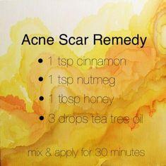 how to get rid of acne scars #bodycareacnescars #Acneskin