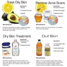 4 DIY Skin Care Recipes for Healthier Skin - DIY for Life Try these skin care recipes. They hit the 4 major issues most of us may have in our lives: dull skin, dry skin, oily skin and acne skin. Anyone else have other remedies to share? Skin Tips, Skin Care Tips, Piel Natural, Acne Free, Dull Skin, Acne Skin, Acne Scars, Body Acne, Tips Belleza
