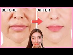 SMILE LINES, SAGGY JOWLS Facial Exercises (Nasolabial Folds/ Laugh Lines) Lift Up Saggy Cheeks! - YouTube