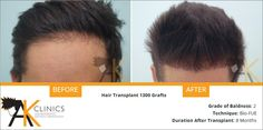 Restore your hairline with Hair Transplant ‪#‎Surgery‬. See the Result Before and After ‪#‎Images‬ at ‪#‎AKClinics‬