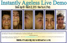 My wonderful and beautiful Aunt Diane! Instantly Ageless is a breakthrough product and WOW, I am loving it and making great money as I change lives two minutes at a time! Watch my 2 minute video: www.doyouknowsomeonewithaface.com