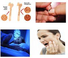 Calcium Deficiency, Calcium Supplements, Muscle Contraction, Bones, Minerals, Wordpress, Let It Be, Signs, Shop Signs