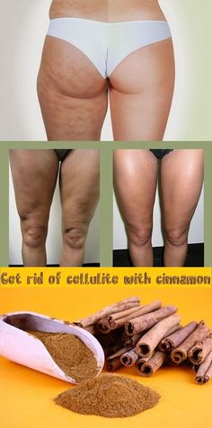 Get Rid of Cellulite with Cinnamon There are many solutions and preparations that promise to beat cellulite but among them seem the most effective natural remedies. In the list of best beat cellulite ingredients are: coffee honey Natural Cures, Natural Health, Health And Beauty Tips, Health Tips, Health Remedies, Home Remedies, Healthy Skin, Healthy Life, Cellulite Remedies