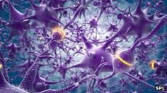 Neural network > Down's syndrome 'linked to brain protein loss' [click image for article]