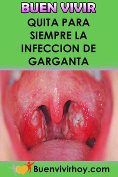 Como puedo quitar la infeccion de garganta