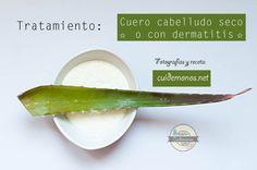 Remedio para la dermatitis y el cuero cabelludo seco: http://www.cuidemonos.net/2014/05/tratamiento-casero-para-cuero-cabelludo.html