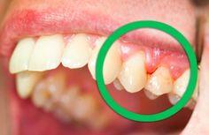 4 bains de bouche qui traitent efficacement les gencives qui saignent