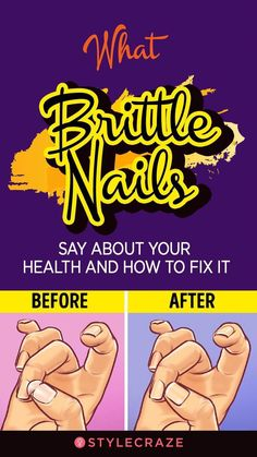 What Brittle Nails Say About Your Health And How To Fix It #omg #health #wellness #BestShampooToPreventHairLoss #BestNaturalShampooForHairLoss #HairFallAndHairLoss #BestHairLossShampoo