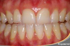 bordes incisales desgastados #dental