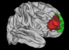"""Newly Discovered Brain Region May Be Unique To Humans. """"The new brain region is located within a larger region called the ventrolateral frontal cortex, which in past studies has been tied to higher thinking. For instance, this part of the brain houses Broca's region, which plays a critical role in language. Differences in the ventrolateral frontal cortex have also been tied to psychiatric disorders such as compulsive behavior disorders and attention deficit hyperactivity disorder (ADHD)."""""""
